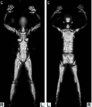 Feds Lie – Save Thousands of Body Scan Images
